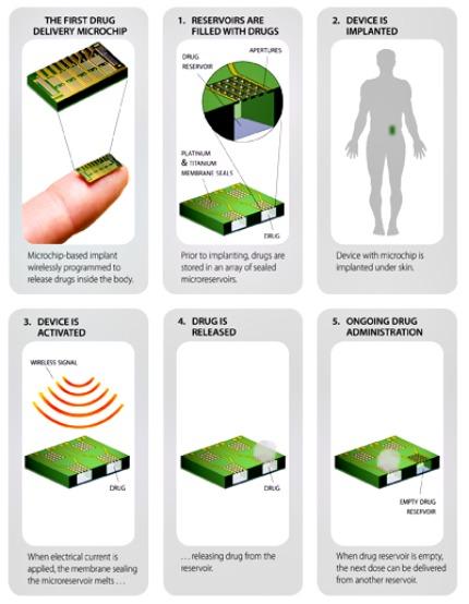 microchip screenshot